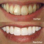 vorher-nachher Zahnfarbe